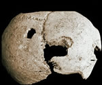 Trident holes in a gladiator&#039;s skull