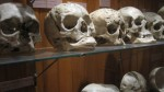 Syphillitic skulls
