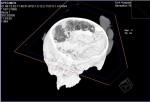 Heslington skull; dark part is folded brain matter, light part is soil
