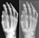 Cadaver hand X-rayed with 1896 machine (left) and modern (right)