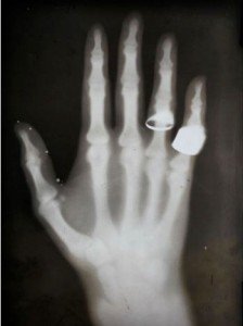 Van Kleef's daughter's hand X-rayed on January 31, 1896
