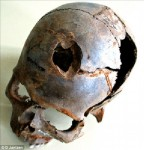 Skull found at Tollense River site with fatal blunt force trauma