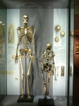 Skeleton of Charles Byrne on display