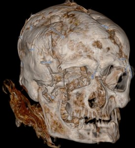 CT scan of Worsley Man; the blue staples put the skull back together after the coroner's examination in 1958