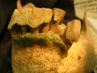 Thick plaque buildup on ancient teeth; photo by G. Richard Scott, University of Nevada, Reno