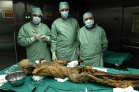 Researchers examine Otzi