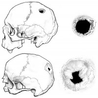 Diagram of the trepanned skulls