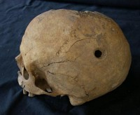 Trepanned woman's skull found in Soria