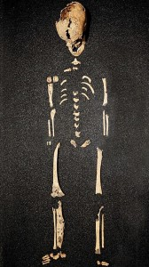 Skeleton of 11-year-old with congenital syphilis