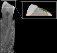 Section of the canine (left), 18 micrometer resolution, micro-CT detail of the crown showing the thickness of the beeswax in yellow (right)