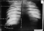 Roosevelt&#039;s chest X-ray, bullet in the bottom left