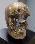 Skull found in kitchen cellar put back together