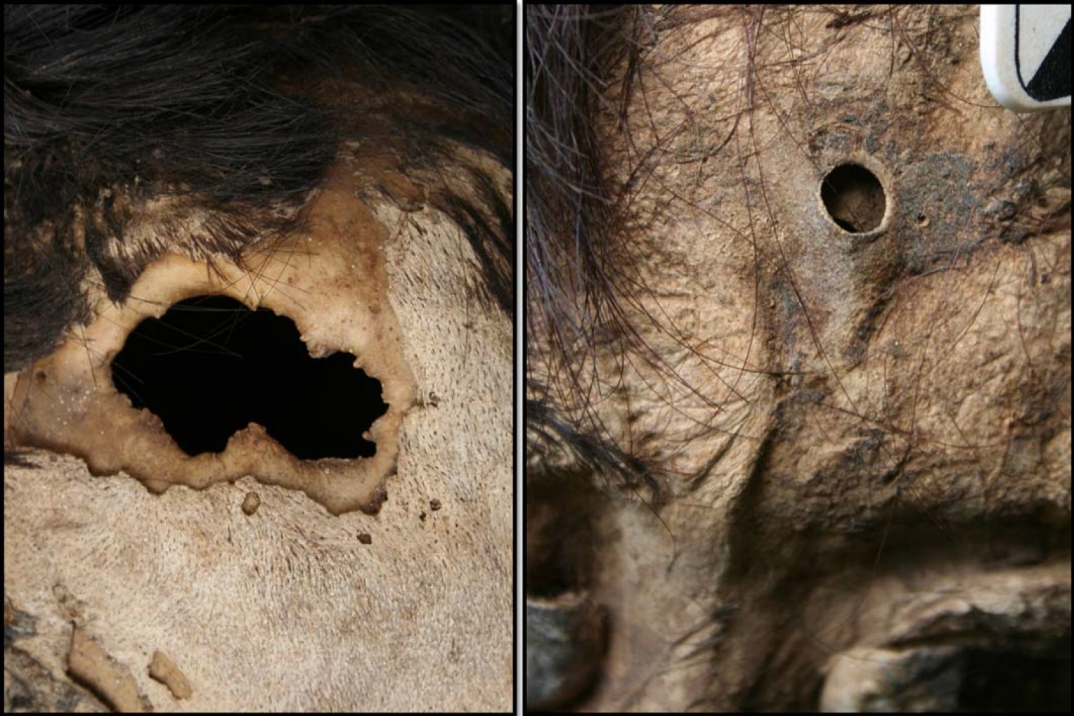 Blog Archive » Thousand-year-old trepanned skulls of the Andes